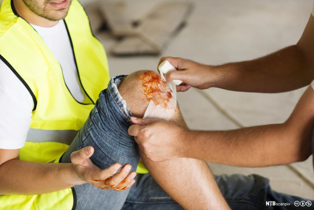En person får hjelp til å rense et sår på kneet. Foto.