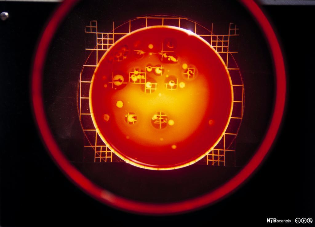 Bakteriekultur under mikroskop