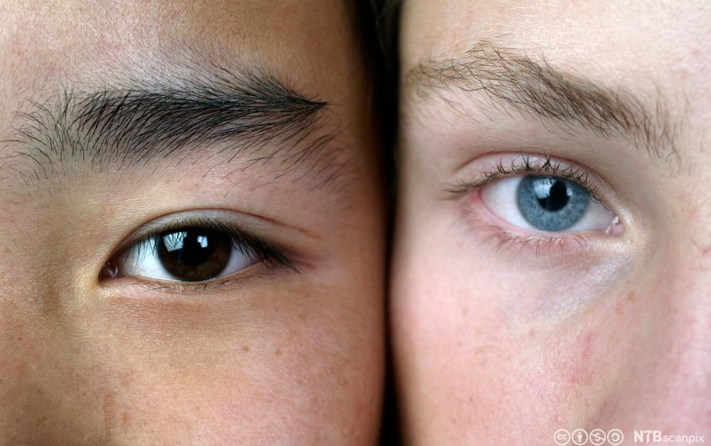 Et blått og et brunt øye. Foto.