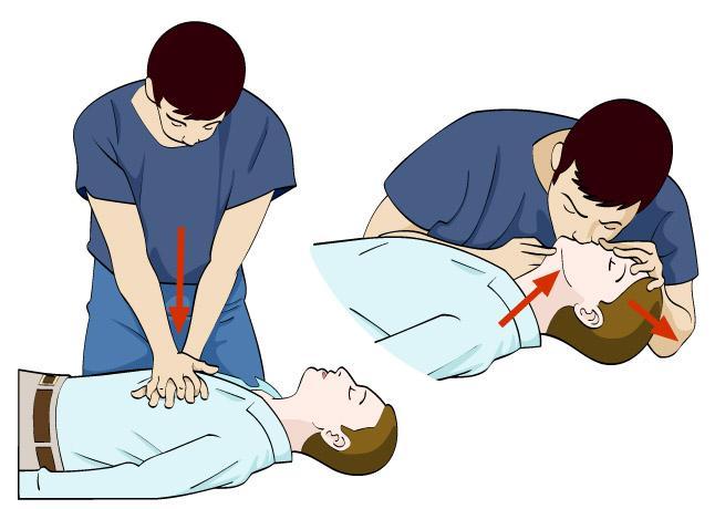 En person driver hjerte- og lungeredning på en bevisstløs person. Illustrasjon.