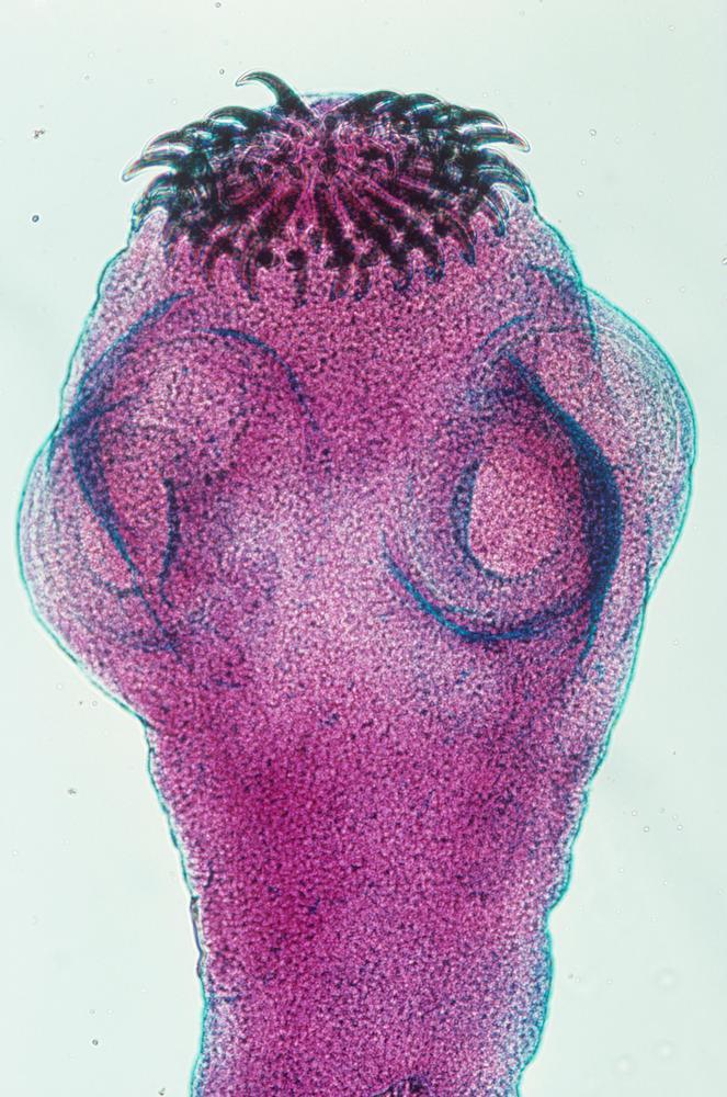 Bendelormens scolex (hode)