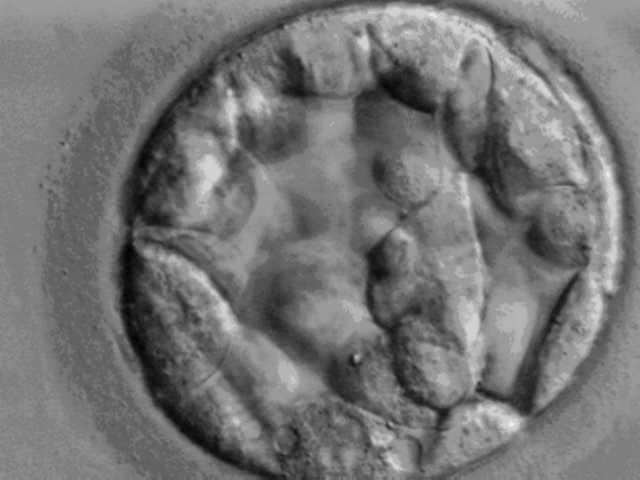 Mikroskopbilde av rund celleklump. Foto.