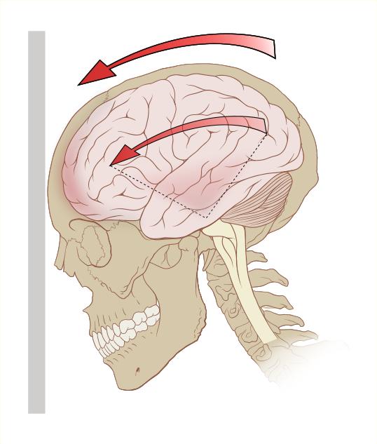 Hjerne i rotasjon. Illustrasjon.