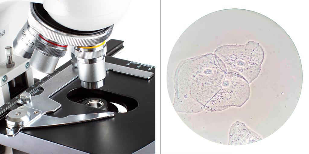 Bildekollasj som viser et mikroskop og et mikroskopbilde av en epitelcelle. Foto.