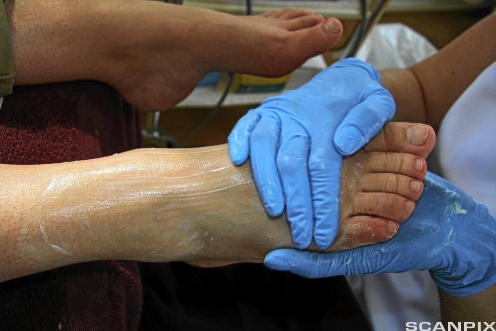 Hender med blå hansker smører fotkrem på en fot. Foto.