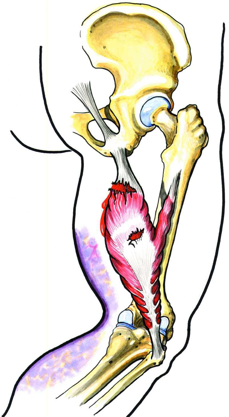 Skade på muskelen bak på låret. Illustrasjon.