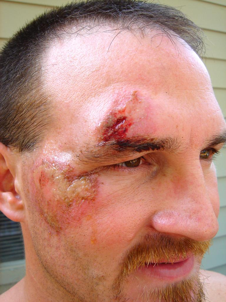 En mann med sår i ansiktet. Foto.