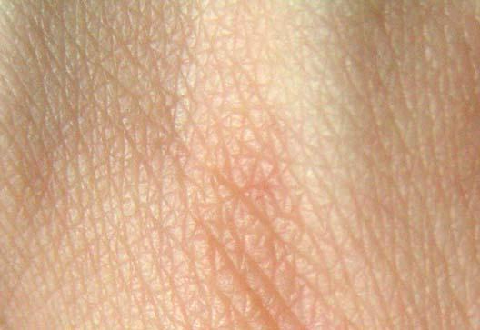 Nærbilde av hudstruktur hos menneske.