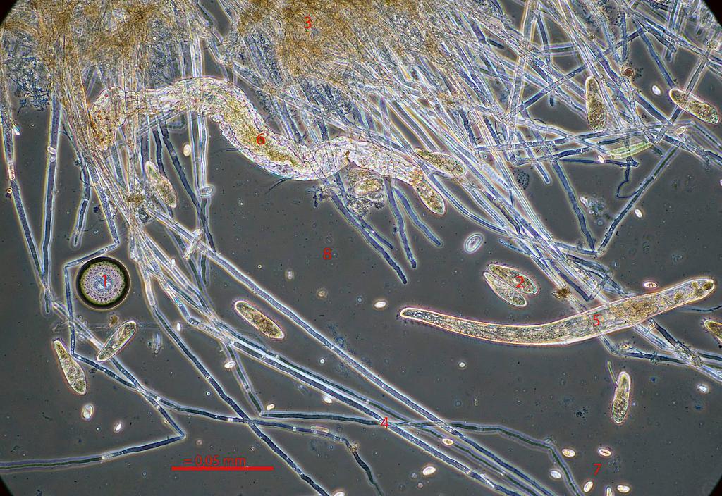 Mikroskopbilde.