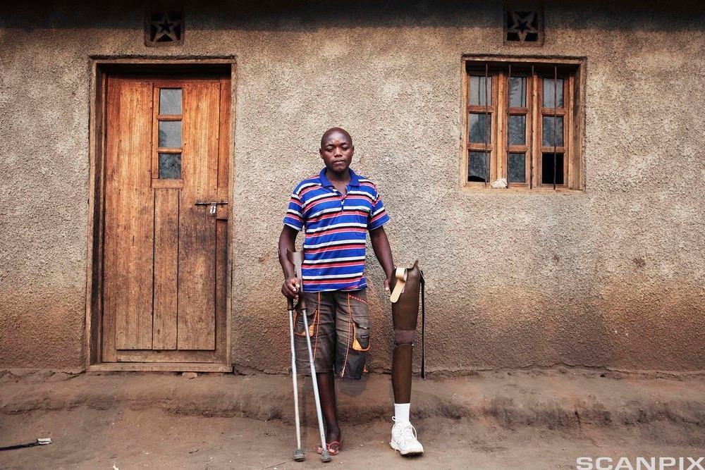 krigsskadet mann fra Kongo med amputert bein. Foto.