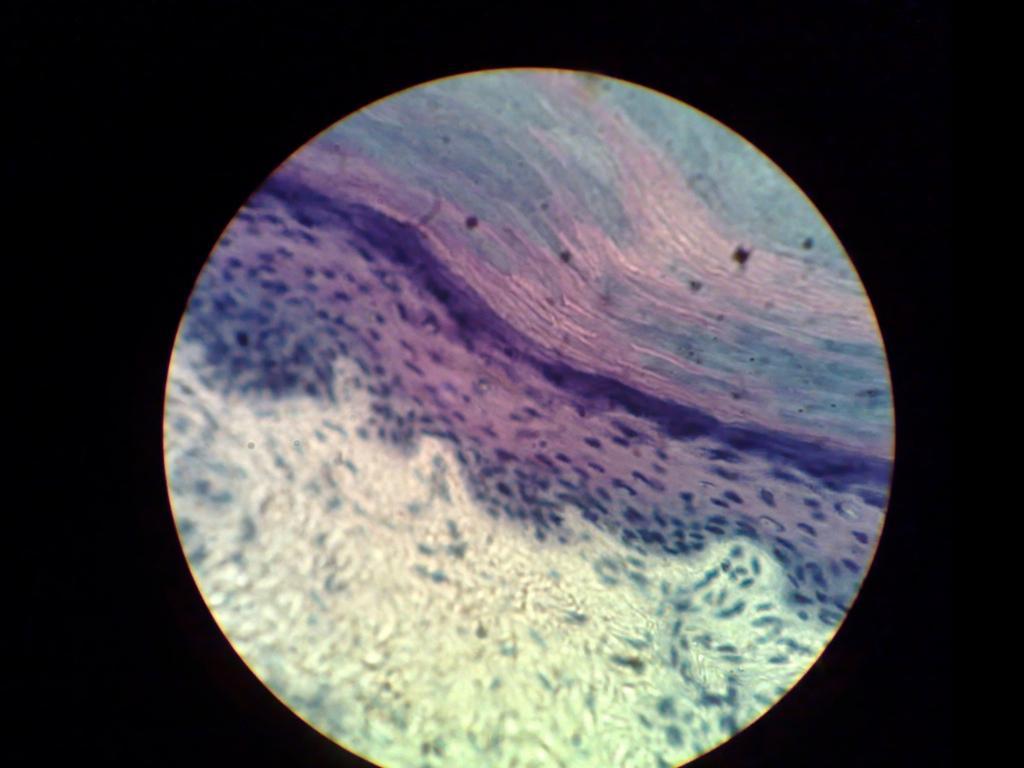 Mikroskopbilde av hud. Foto.