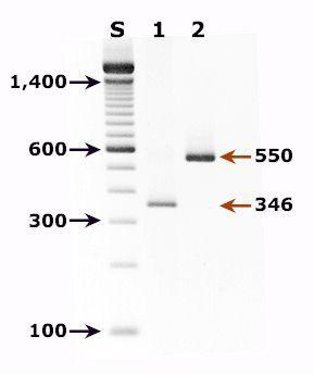 DNA-typing diagnostikk. Foto.