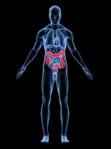 Menneskefigur med tykktarmskreft. Illustrasjon.