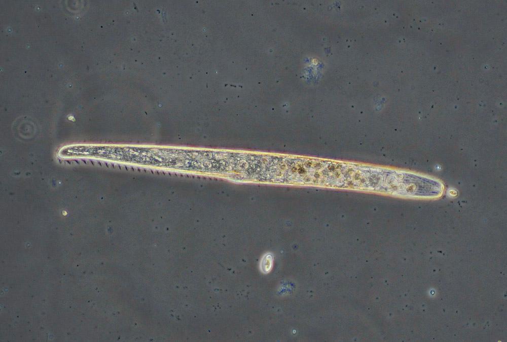 Mikroorganismer. Foto.