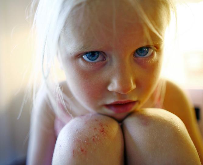 Liten jente med skrubbsår på knærne. Foto.