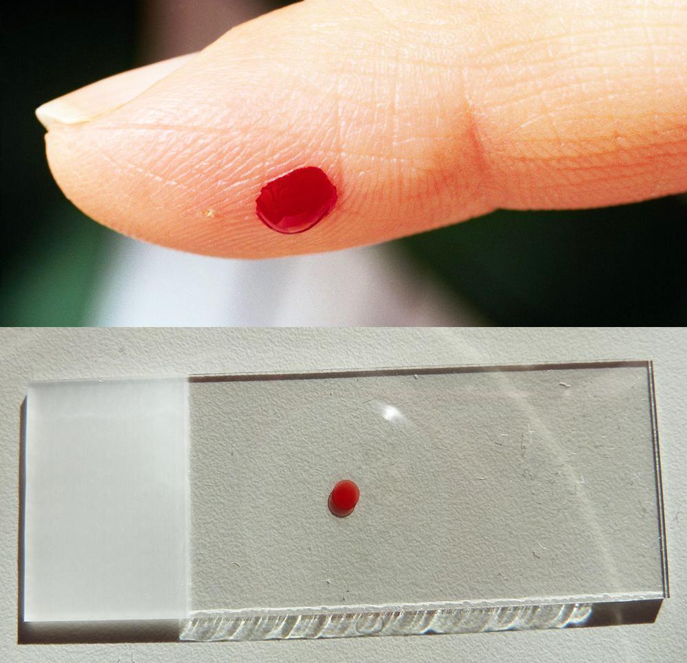 En finger med bloddråpe over et objektglass. Foto.