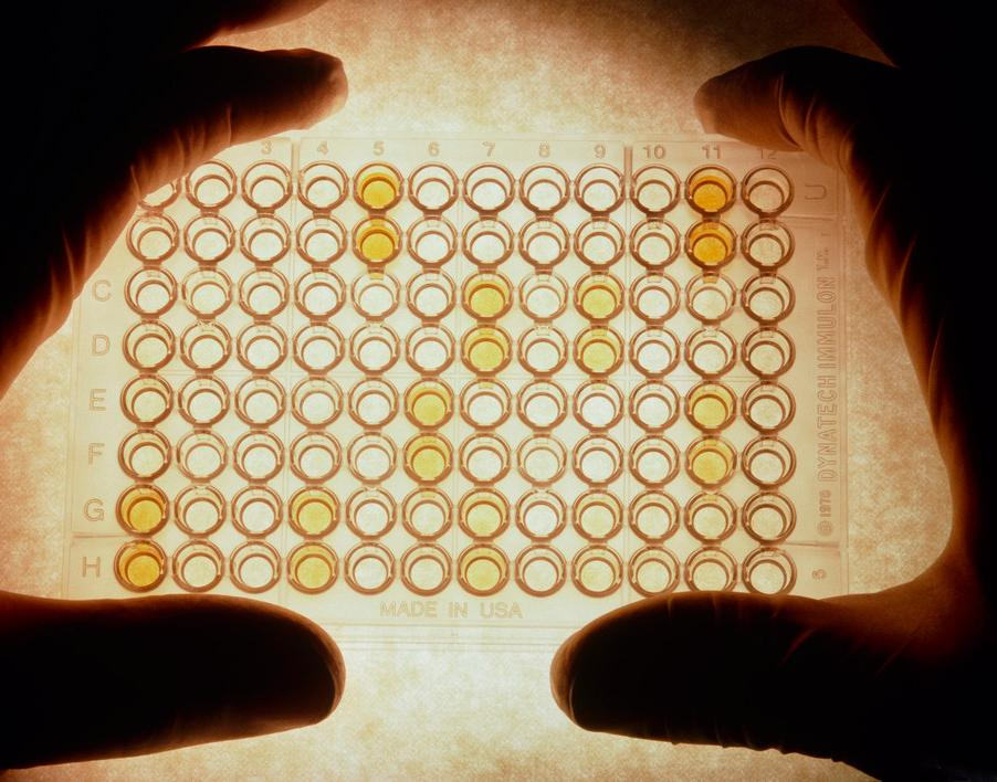 ELISA test for AIDS