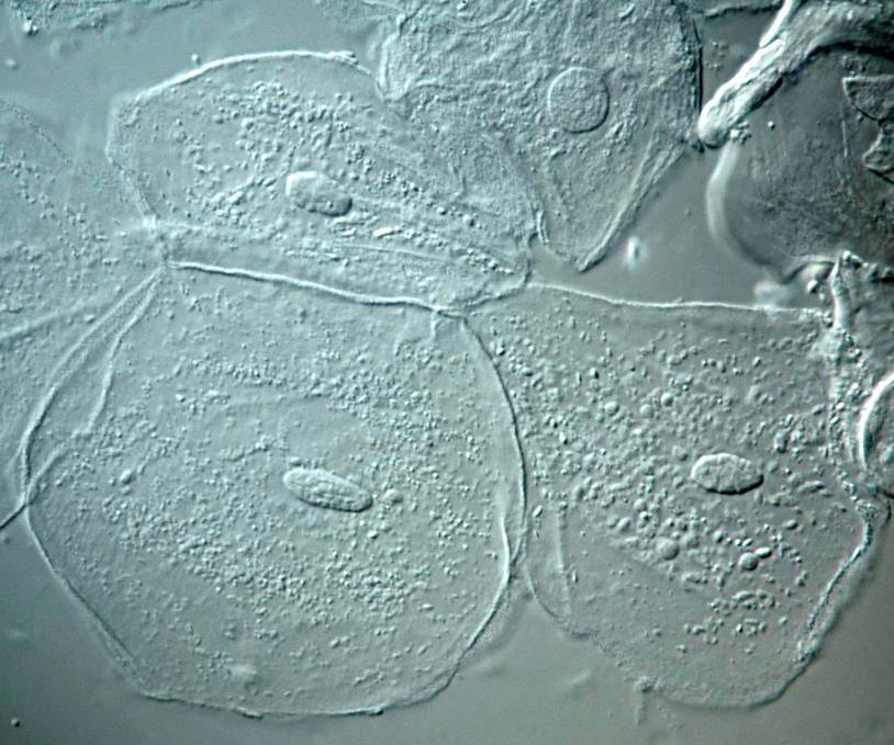 Fargeløse runde celler med tydelig kjerne og kornete cytoplasma.