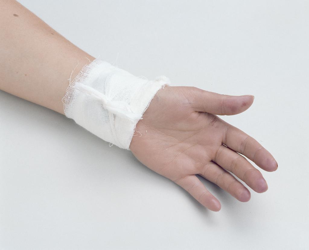 En hand med en bandasje på. Foto.
