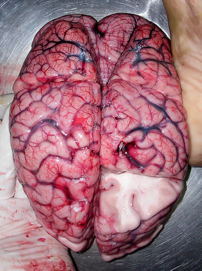 Menneskehjerne med snitt, slik at man ser det hvite cecet på innsiden.