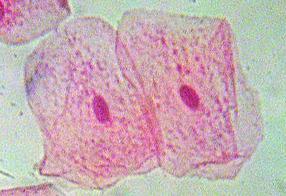 Røde celler med tydelige kjerner. Mikroskopbilde.