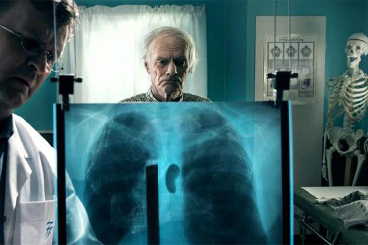 En eldre mann ser med trist mine på et røntgenbilde av en brystkasse, hvor det er en stor, mørk flekk mellom lungene. Utsnitt fra filmen Tuba Atlantic.