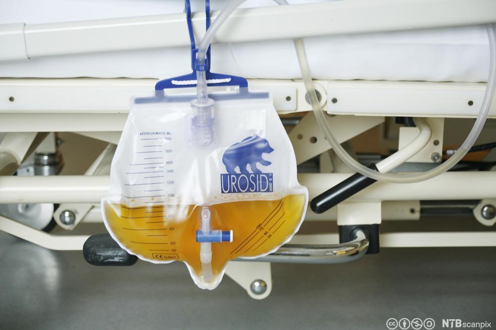 Urinpose henger på sykeseng. Foto.