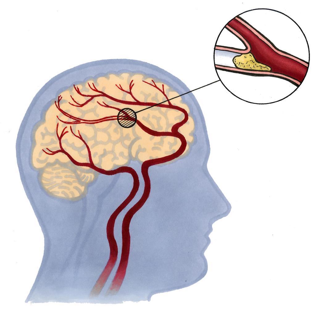 Blodpropp i hjernen. Illustrasjon.