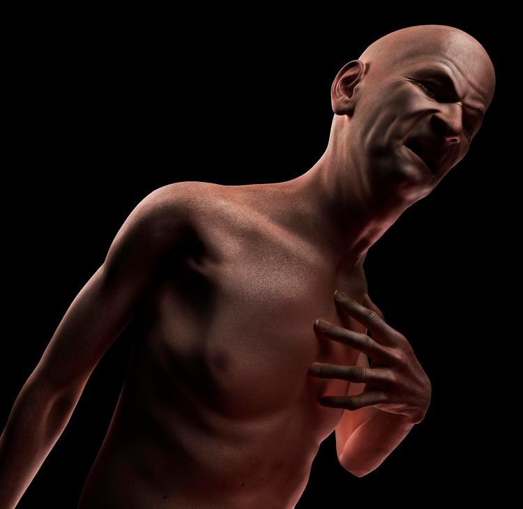 Mann som får et hjerteinfarkt