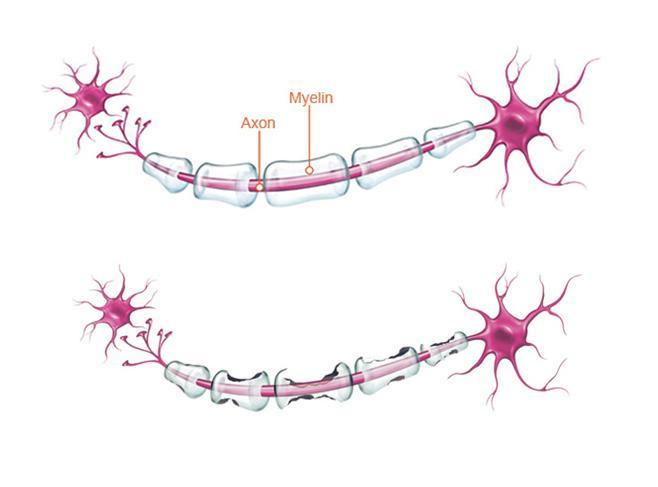 2 nerveceller som viser forskjellen mellom ei frisk nervecelle og ei nervecelle angripen av Multippel sklerose. Illustrasjon.