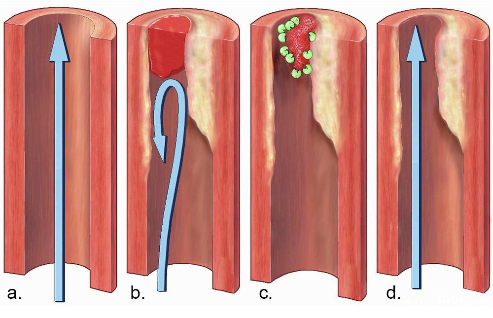 Normal blodsirkulasjon og blodpropp