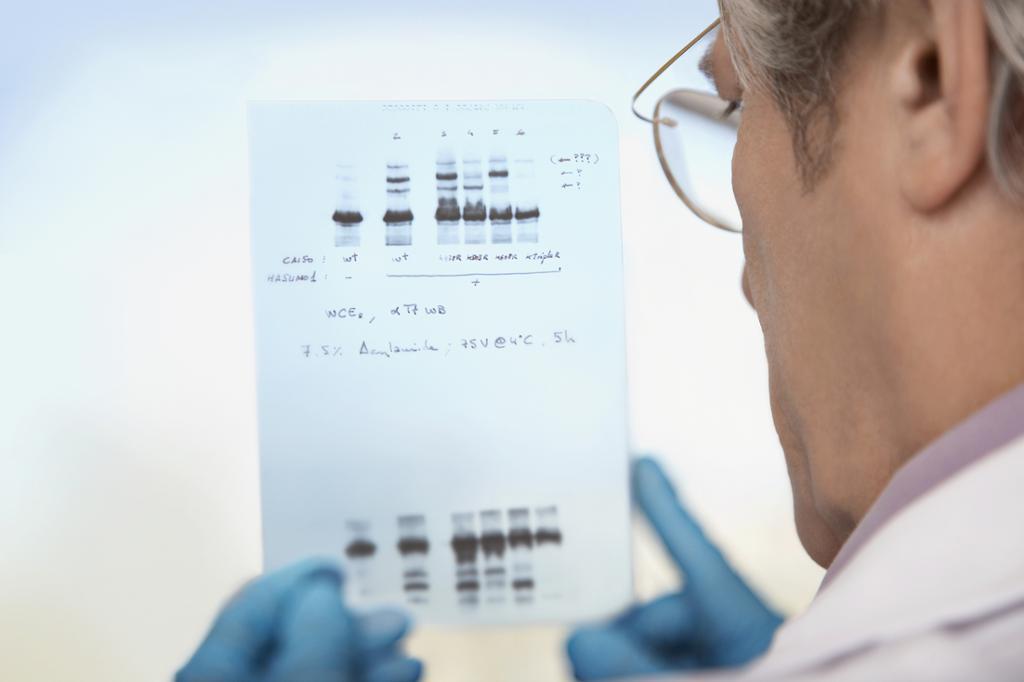 Forsker undersøker utskrift med resultat av DNA-test. Foto.