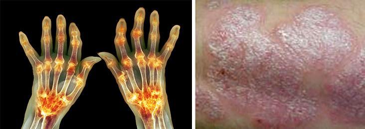 Kokete fingre og hud med utslett som flasser. To foto.