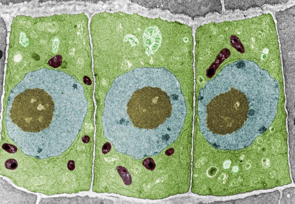 Mikroskop bildet som viser kjerne, cellevegg og mitokondrier i rotceller hos løk. Foto.