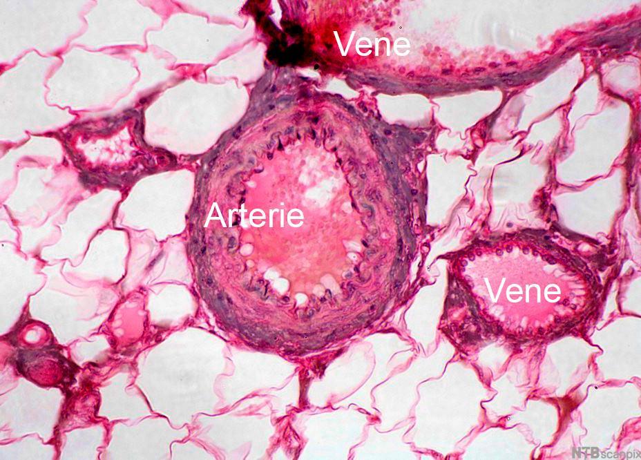 Mikroskopisk snitt av vev med blodårer. Arterien har tykke årevegger.