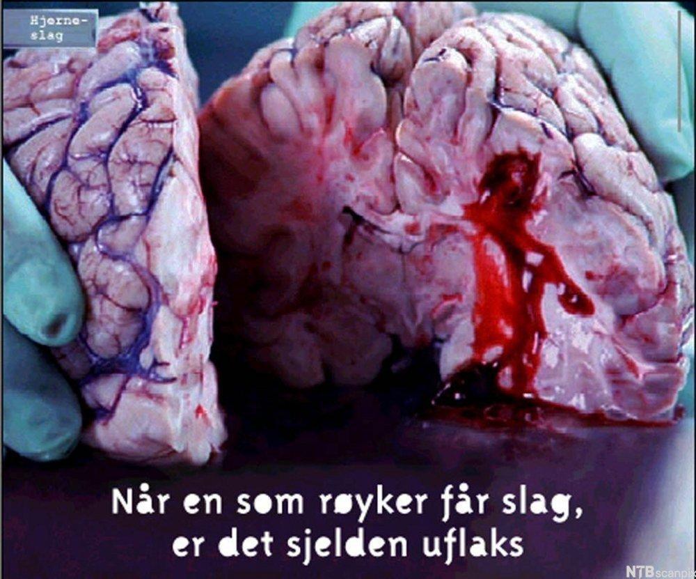 Bilde fra en antirøykekampanje som viser nærbilde av en lunge. Bildet har følgende tekst: Når en som røyker får slag, er det sjelden uflaks. Foto.