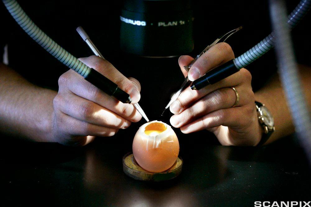 To hender holder operasjonsinstrumenter over egg. Foto.