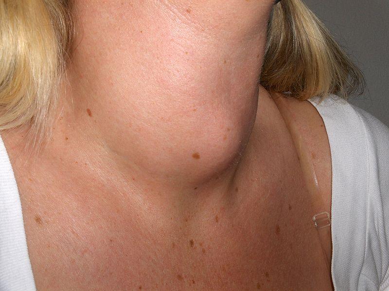 Nærbilde av kvinnehals med struma. Foto.