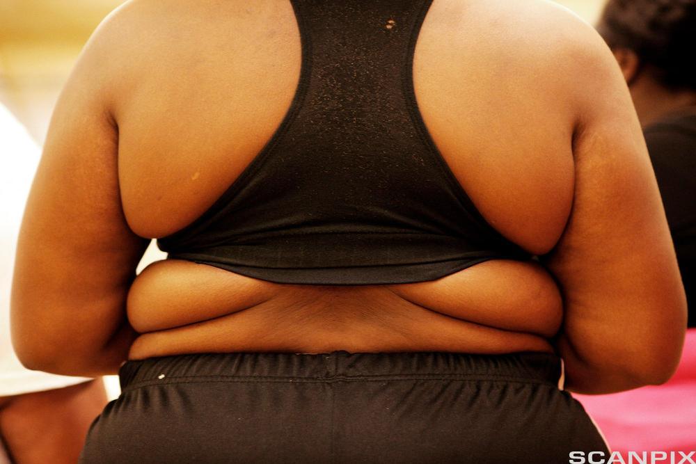Overvekt