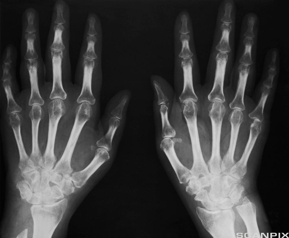 Røntgenbilde av to hender. Foto.