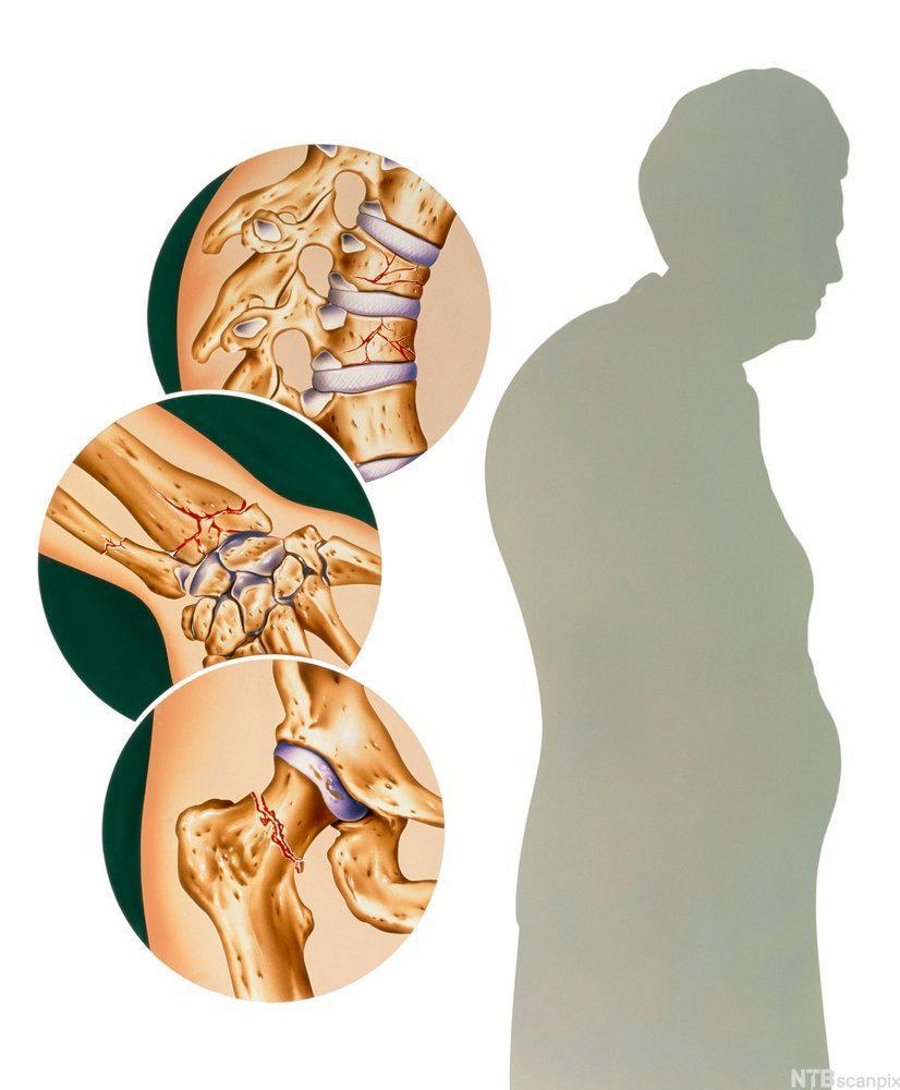 Osteoporose vist i skjelett. Foto.