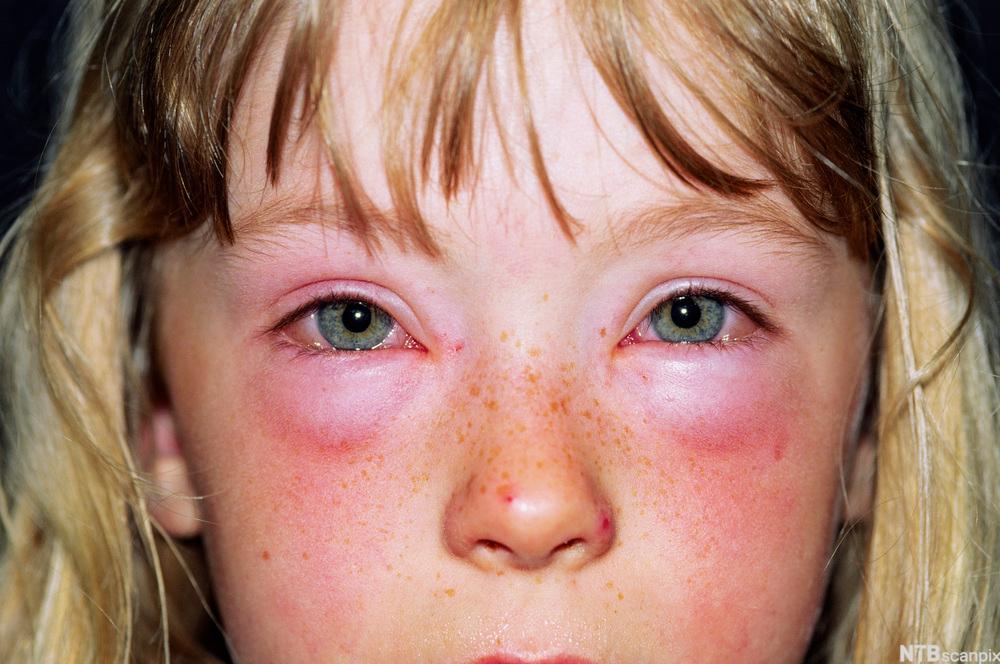 Ung jente med røde hovne øyer.