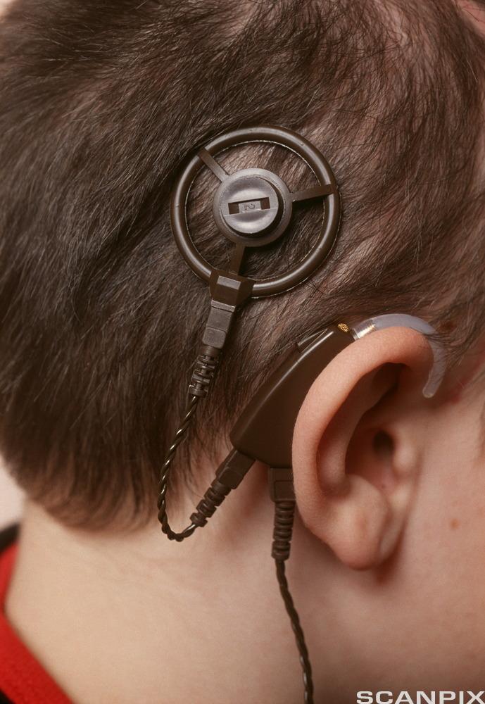 Gutt med cochlea implantat