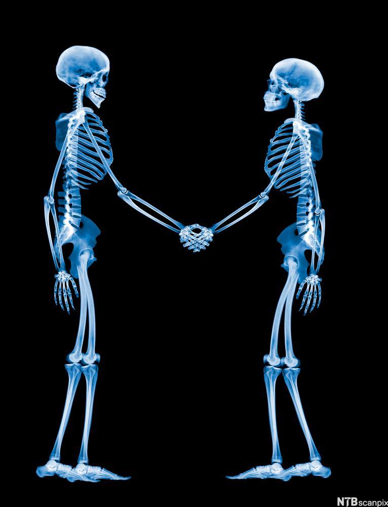 Bilde av to skjeletter som håndhilser. Foto.