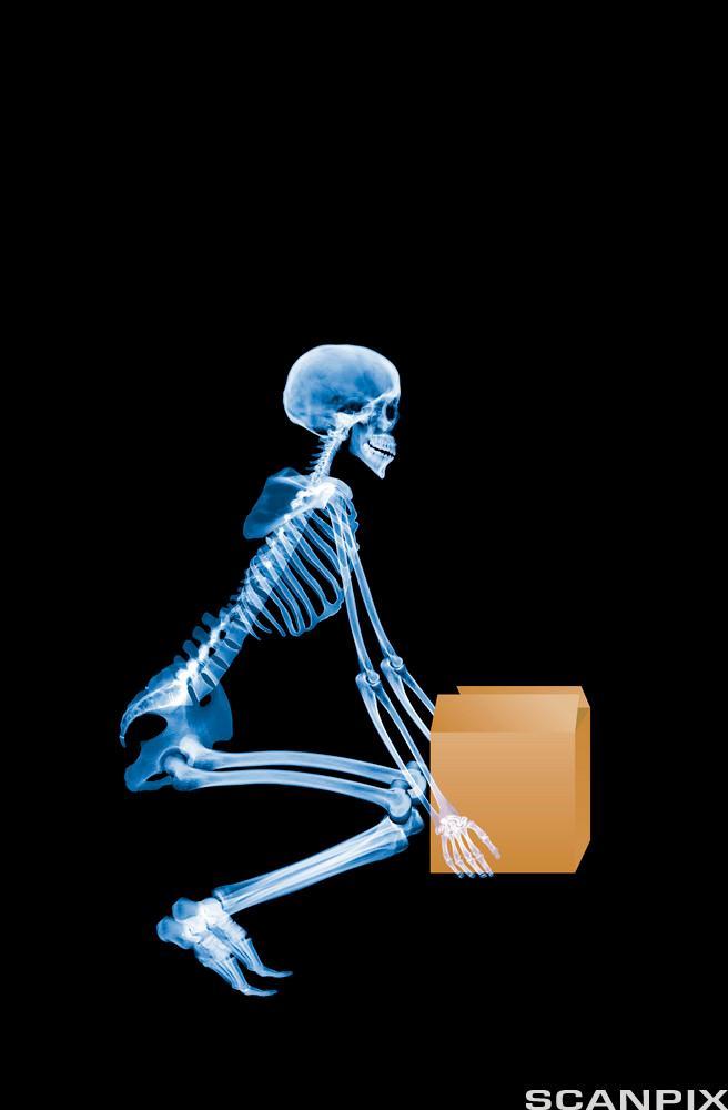 Røntgen av menneske som løfter eske. Foto.