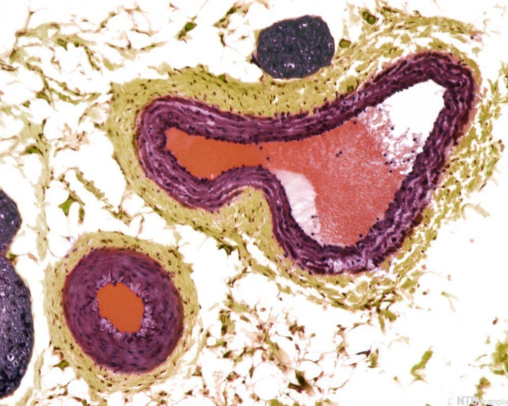 Tverrsnitt av to lodårer. Mikroskopbilde.