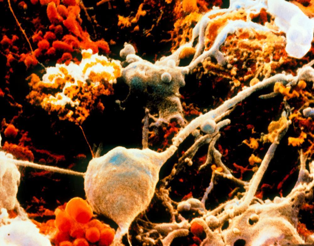 Mikroskopbilde av nerveceller og gliaceller frå hjernen. Foto.