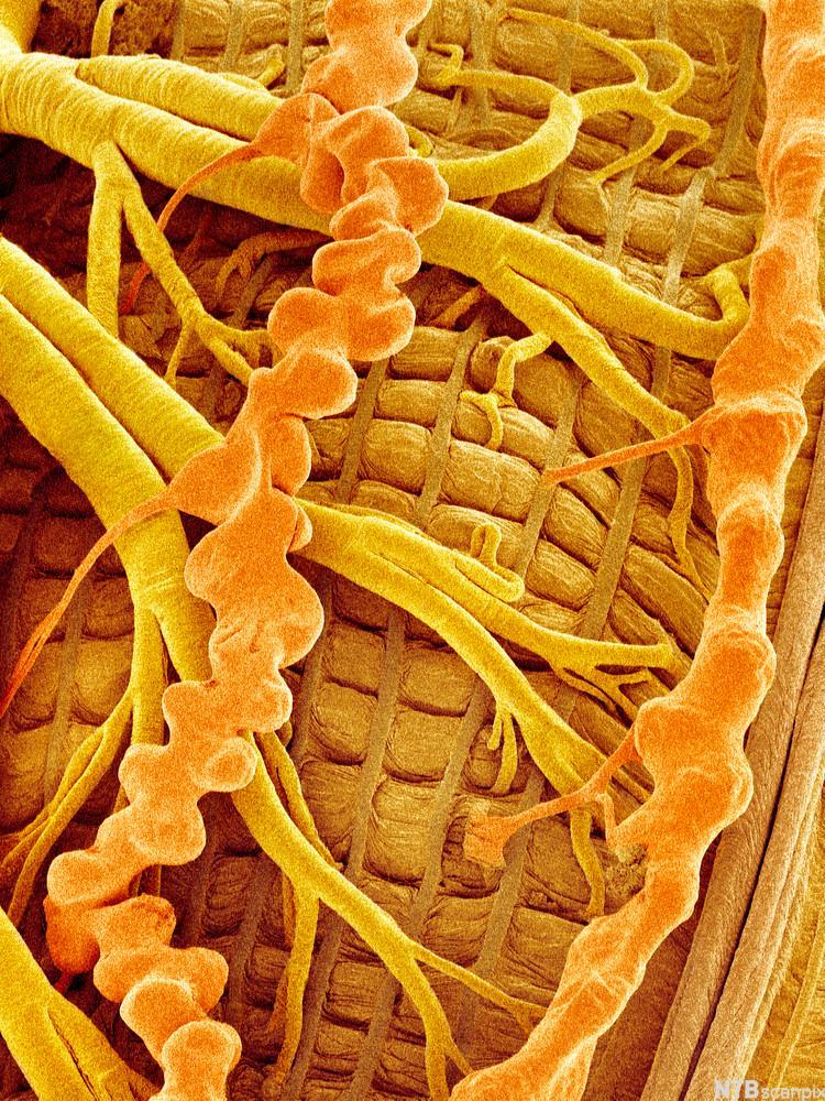 Mikroskopbilde av trakeer hos et insekt. Foto.
