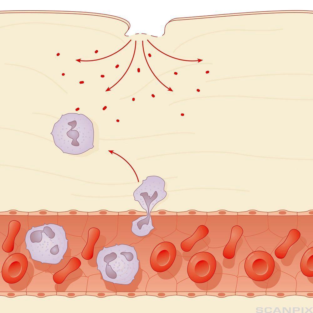 Makrofager spiser bakterier i hudoverflaten. Illustrasjon.