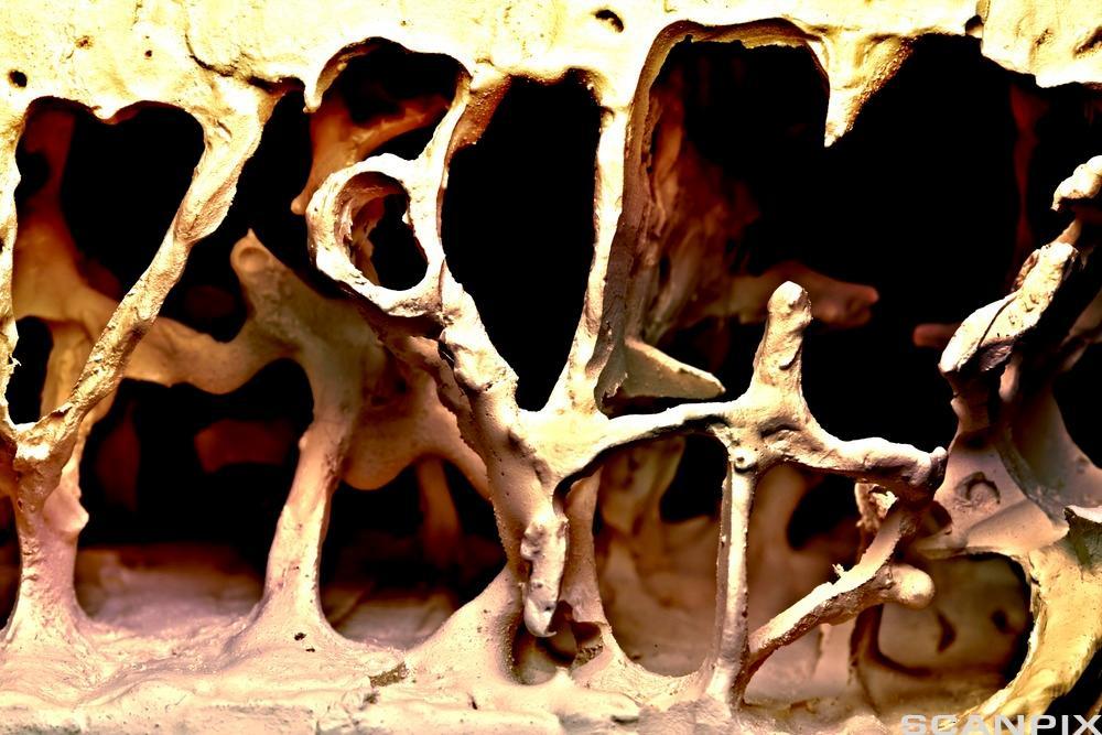 Illustrasjonsbilde, bein med osteoporose